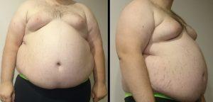 Estamos en una nueva era de obesidad. ¿Cómo ha ocurrido? Te sorprendería